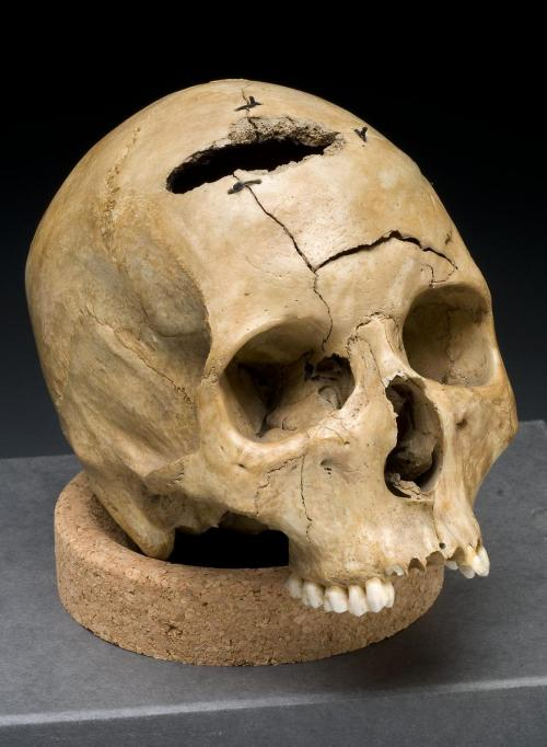 thecivilwarparlor:  Civil War Gunshot Wound about 1861-1865 Skull showing 'keyhole' gunshot trauma. Civil War Collection, National Museum of Health and Medicine, Armed Forces Institute of Pathology, Washington, D.C. Reading Gunshot Patterns The mass manufacture of guns in the 19th century led to an epidemic of gunshot wounds incurred in wars, violent crimes, suicides, and accidents. The study of gunshot wounds became an integral part of criminal investigation and forensic pathology. National Museum of Health and Medicine: The institution's 25-million object collection, focusing on topics as diverse as innovations in military medicine, traumatic brain injury, anatomy and pathology, military medicine during the Civil War, are on display.  http://www.nlm.nih.gov/hmd/medtour/nmhm.html