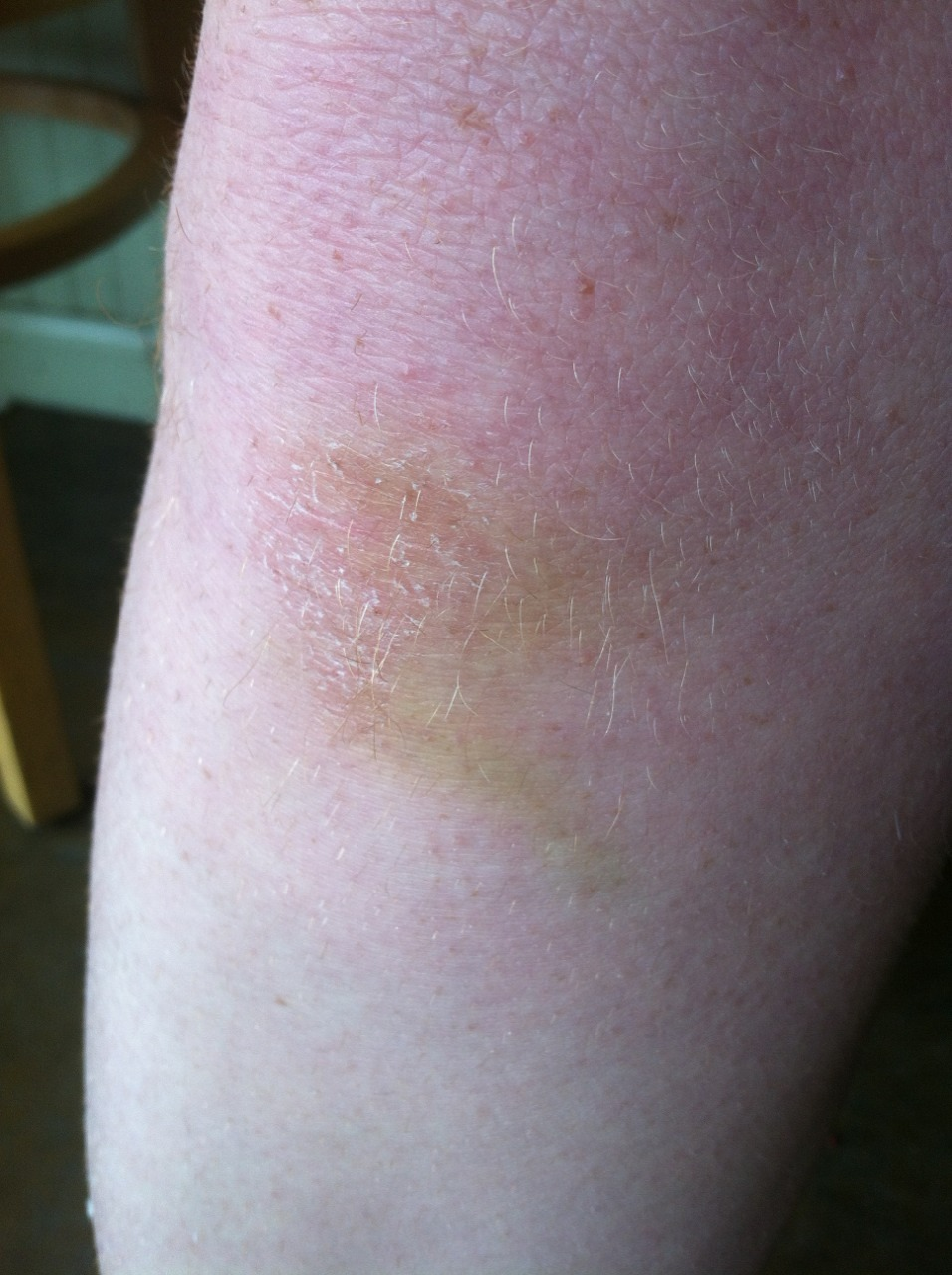 The changing colors of my knee