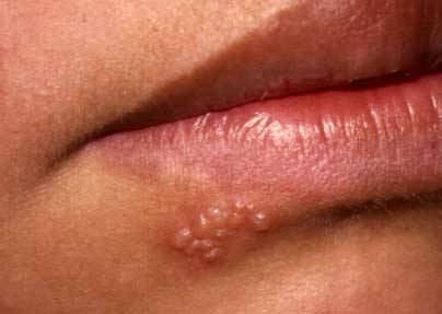 Early signs of herpes on penis
