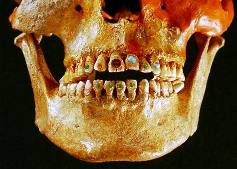 "fuckyeahforensics:  ""Advanced dentistry techniques allowed Native Americans to inset gemstones to their teeth as far back as 2,500 years ago. The early dentists used a drill-like device with a hard stone such as obsidian, which is capable of puncturing bone. The ornamental stones—including jade—were attached with an adhesive made out of natural resins, such as plant sap, which was mixed with other chemicals and crushed bones.""  Awesome."