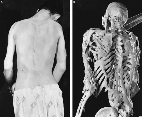 "compoundfractur:  Fibrodysplasia ossificans progressiva is a rare genetic mutation causing fibrous tissue to ossify when it gets damaged. Literally, your connective tissue turns to bone and over the years you ""turn to stone"" and lock up. Can't we just operate and remove the bone growths? Nope. This causes further tissue damage, and therefore further ossification. Even just doing a biopsy of affected tissue can cause further harm to these individuals. As of yet there is no cure or treatment, but geneticists are certainly interested in developing gene therapy for these unfortunate individuals.  La fibrodisplasia osificante progresiva es una mutación genética rara que causa el tejido fibroso a osificarse cuando se daña. Literalmente, tu tejido conectivo se convierte en hueso y con los años te ""conviertes a piedra"" y te encierras. No podemos operar y quitar los crecimientos óseos? No. Esto causa daños al tejido, y por lo tanto aún más osificación. Incluso solo haciendo una biopsia del tejido afectado puede causar más daño a estos individuos. Hasta el momento no existe cura o tratamiento, pero los genetistas están interesados ​​en desarrollar una terapia génica para estos individuos desafortunados."