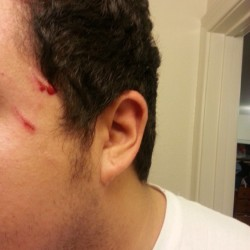 My cat got scared, panicked and jumped right on my face. #ouch #catguyproblems