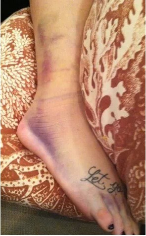 OUCH! Looks like Demi Lovato will be taking it easy for a few weeks. Apparently the singer slipped on some newly cleaned hardwood floors and banged up her foot BADLY. She will have to be in a cast and on crutches.