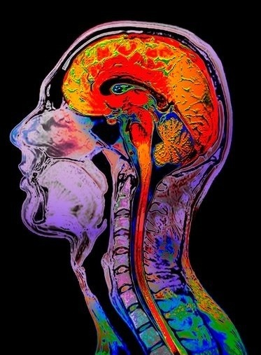 Normal brain, coloured magnetic resonance imaging (MRI) scan. Sagittal (side) view of a human head and neck, showing the brain and upper spinal cord (red/orange). The cerebrum (folded region) is the largest part of the brain and is made up of two hemispheres. It is responsible for conscious thoughts and actions, memory and personality. The branched structure at the back of the brain is the cerebellum, which controls voluntary movement and maintains posture and balance. Vertebrae (spinal bones) are also seen running alongside the spinal cord.