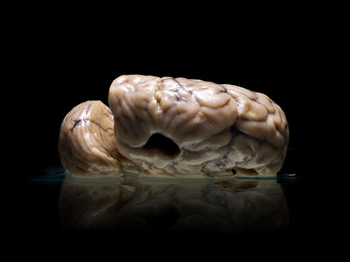 neurosciencestuff:   Today the White House announced its goal to fund Brain Research, in hopes of furthering understanding of brain disorders and degenerative diseases such as Alzheimer's. Two years ago Scientific American magazine sent me to the University of Texas at Austin to borrow a human brain. They needed me to photograph a normal, adult, non-dissected brain that the university had obtained by trading a syphilitic lung with another institution. The specimen was waiting for me, but before I left they asked if I'd like to see their collection. I walked into a storage closet filled with approximately one-hundred human brains, none of them normal, taken from patients at the Texas State Mental Hospital. The brains sat in large jars of fluid, each labeled with a date of death or autopsy, a brief description in Latin, and a case number. These case numbers corresponded to micro film held by the State Hospital detailing medical histories. But somehow, regardless of how amazing and fascinating this collection was, it had been largely untouched, and unstudied for nearly three decades. Driving back to my studio with a brain snugly belted into the passenger seat, I quickly became obsessed with the idea of photographing the collection, preserving the already decaying brains, and corresponding the images to their medical histories. I met with my friend Alex Hannaford, a features journalist, to help me find the collection's history dating back to the 1950s. Over the past year while working this idea into a book, we've learned how heavily storied the collection is. That it was originally intended to be displayed and studied, but without funding it instead stagnated. And that the microfilm histories of each brain had been destroyed years ago. My original vision of a photo book accompanied by medical data and a comprehensive essay turned into a story of loss and neglect. But Alex continued to pursue some scientific hope for the collection. After discussions with various neuroscientists we learned that through MRI technology and special techniques in DNA scanning there is still hope. And with the new possibilities of federal brain research funding, this collection's secrets may yet be unlocked. As we begin the hunt for someone to publish my 230 images accompanied by Alex's 14,000 word essay, the University has found new interest in the collection. They currently are planning to make MRI scans of the brains.  Malformed – A Collection of Human Brains from the Texas State Mental Hospital by Adam Voorhes