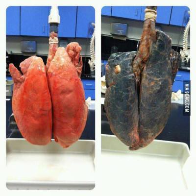 livewhtyalove:  non-smoker and smoker lungs