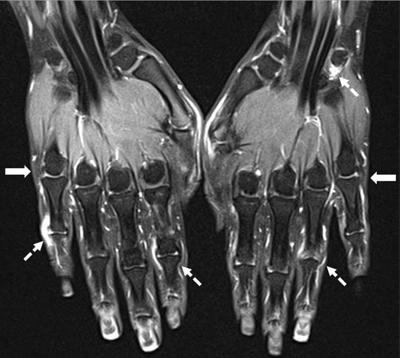 oh-the-nightmares:  MRI of hands with rheumatoid arthritis