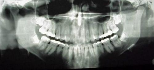 medicalschool:  A panographic x-ray gives a panoramic view of your mouth. It provides valuable information about the position of wisdom teeth, receding bone levels which is a sign of periodontal disease, jaw-joint problems, sinus problems, and is often used for orthodontic diagnosis.