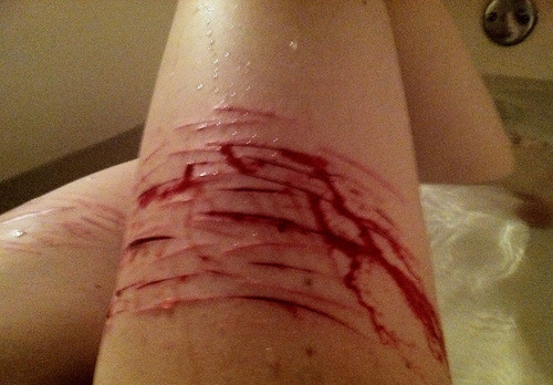 self-harm-confessions:  343) And to think I was getting better. Hm.