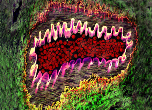 "currentsinbiology:  Healthy Arteriole in Eye - with tough, flexible elastin wall (pink), red blood cells (red) and supporting collagen fibers (web-like ""netting,"" and yellow & green areas) Donald Pottle. Boston, MA, USA Technique: Confocal, 40x Objective"