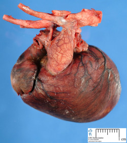 medicalschool:  The Human Heart