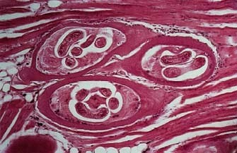 Trichinosis, muscle biopsy Trichinosis is a parasitic infection secondary to consuming undercooked pork. The condition manifests in three phases; (1) the ingested larvae penetrate the intestinal wall, causing nausea, vomiting, diarrhea and abdominal pain (2) as the larvae migrate a systemic hypersensitivity response occurs in the form of conjunctival hemorrhages, periorbital edema, splinter hemorrhages (don't confuse for infective endocarditis) and chemosis. (3) the last phase occurs when larvae invade skeletal muscle causing muscle pain and weakness. CBC may show eosinophilia.