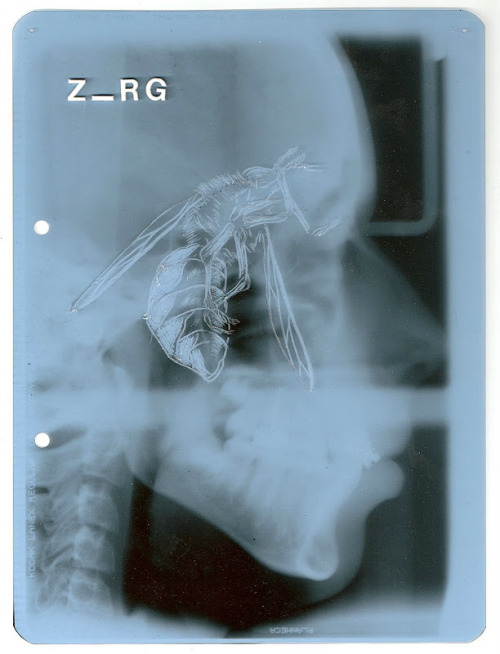 Modified X-Rays by Ben Kruisdijk