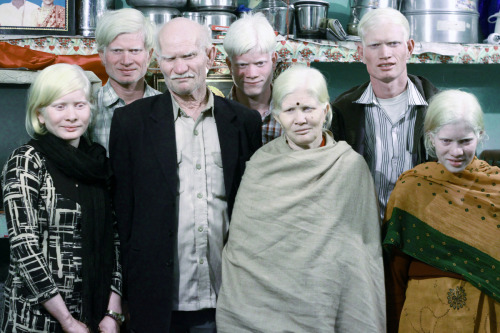 losed:   Albino Indian Family  this is amazing