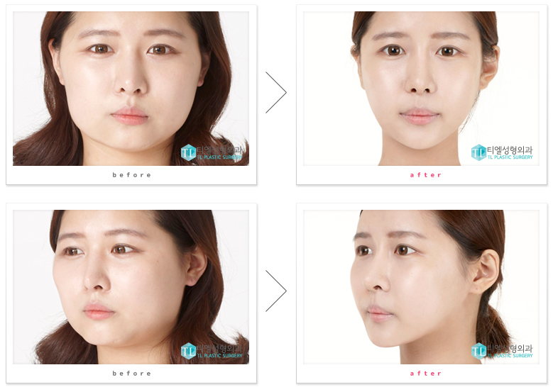 quick zygoma reduction