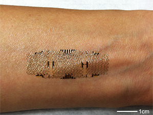 "Electronic Sensors Printed Directly on the Skin New electronic tattoos could help monitor health during normal daily activities. Taking advantage of recent advances in flexible electronics, researchers have devised a way to ""print"" devices directly onto the skin so people can wear them for an extended period while performing normal daily activities. Such systems could be used to track health and monitor healing near the skin's surface, as in the case of surgical wounds. So-called ""epidermal electronics"" were demonstrated previously in research from the lab of John Rogers, a materials scientist at the University of Illinois at Urbana-Champaign; the devices consist of ultrathin electrodes, electronics, sensors, and wireless power and communication systems. In theory, they could attach to the skin and record and transmit electrophysiological measurements for medical purposes. These early versions of the technology, which were designed to be applied to a thin, soft elastomer backing, were ""fine for an office environment,"" says Rogers, ""but if you wanted to go swimming or take a shower they weren't able to hold up."" Now, Rogers and his coworkers have figured out how to print the electronics right on the skin, making the device more durable and rugged.   via wildcat2030 (via Wearable Electronic Sensors Can Now Be Printed Directly on the Skin 