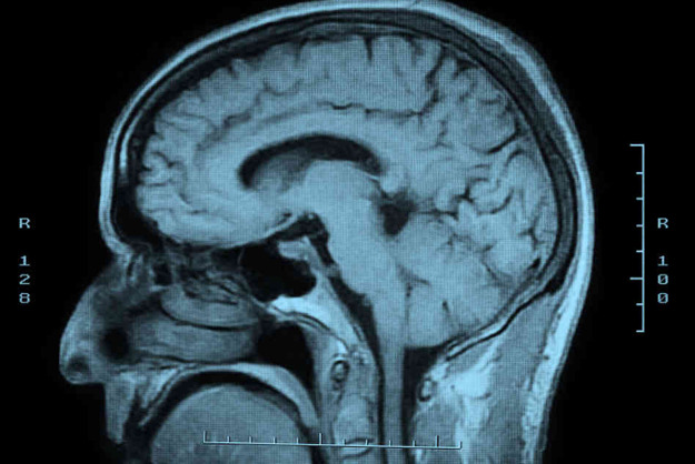 MRI Technology Detects Diseases In Seconds Rather Than Hours - PSFK A typical MRI body scan is a difficult process which involves lying motionless in a tight space often for hours at a time. Imagine if that time could be shortened not only to minutes, but mere seconds. On your next visit to the doctors office, complex scanning procedures could be accomplished quickly and painlessly. Researchers at Case Western Reserve University in Cleveland say that after a decade of work they've developed a new MRI (magnetic resonance imagining) technique that can scan for those diseases very quickly. In just 12 seconds, for instance, it may be possible to differentiate white from gray matter in cerebrospinal fluid in the brain; in a matter of minutes, a full-body scan would provide far more data, making diagnostics considerably easier and less expensive than today's scans.
