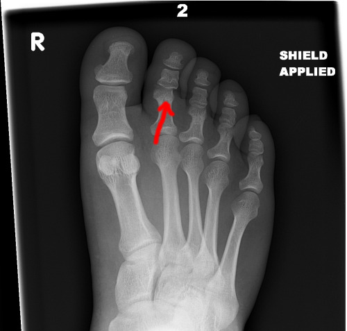 So I (nate) broke and dislocated my toe. Our First Brains will be filling our spot at the comadre show!