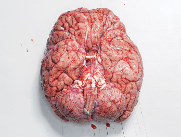 From the news desk of uc san diego health mind your head most mind your head most popular depictions of the exposed human brain present it from the side ccuart Gallery