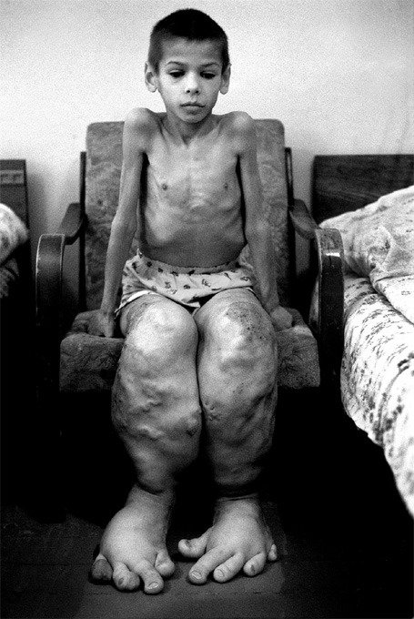 Deformity caused by the chernobyl disaster.