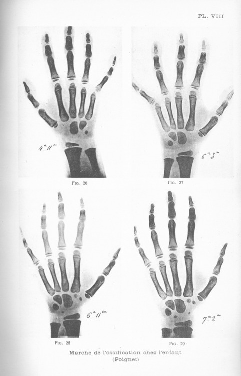 The Developing Hand  It would be difficult to overstate how revolutionary x-rays seemed when they were first formally introduced to the medical community in the late 19th century. We've encountered lots of early radiographs in the process of digitizing theNew York Academy of Medicine Collection of International Medical Theses, but the images above stand out in their clarity, detail, and alien beauty—and in their amazing subject matter. They show the development of the bones in the same child's hand from birth to age 11 years and 9 months, at widely varying intervals. From Adrien Soret, Le Tube de Crookes: Applications Médicales et Chirurgicales de rayons de Rœntgen [The Crookes Tube: Medical and Surgical Applications of Rœntgen Rays]: University of Paris, 1903.