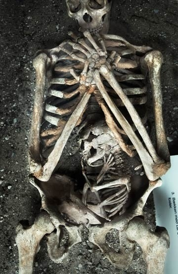 "necronocturne:  ""Skeleton of a woman and foetus/baby who both died during the mother's pregnancy"""
