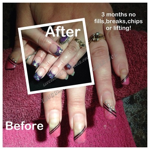 #nofilter #acrylics #before #after so excited that after 3 months her nails looked decent