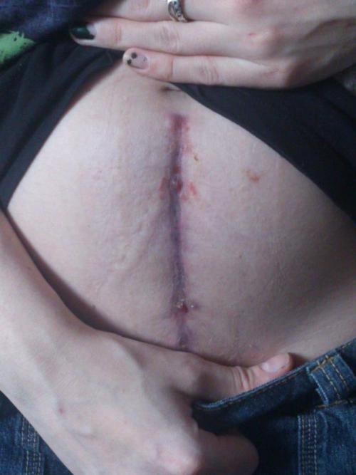This is the scar my operation left me with. I'm slowly learning to love it.