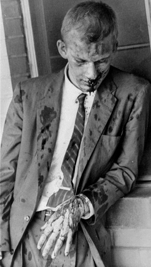 American pacifist James Zwerg of the Freedom Riders immediately after being beaten by an angry mob upon arrival in Montgomery, Alabama in 1960. Zwerg was the first off the bus upon its arrival in the terminal and faced the blunt of the crowd's violence. He would have died that day had it not been for an anonymous black male stepping in and saving his life by deflecting the mob's attention onto himself.