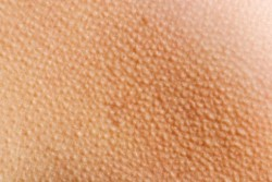 mihsty:  wolfeau:  foxae:  this is my favourite  dem goosebumps  obsessed