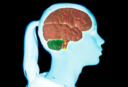 "Sleep study reveals how the adolescent brain makes the transition to mature thinking A new study conducted by monitoring the brain waves of sleeping adolescents has found that remarkable changes occur in the brain as it prunes away neuronal connections and makes the major transition from childhood to adulthood. ""We've provided the first long-term, longitudinal description of developmental changes that take place in the brains of youngsters as they sleep,"" said Irwin Feinberg, professor emeritus of psychiatry and behavioral sciences and director of the UC Davis Sleep Laboratory. ""Our outcome confirms that the brain goes through a remarkable amount of reorganization during puberty that is necessary for complex thinking."" The research, published in the February 15 issue of American Journal of Physiology: Regulatory, Integrative and Comparative Physiology, also confirms that electroencephalogram, or EEG, is a powerful tool for tracking brain changes during different phases of life, and that it could potentially be used to help diagnose age-related mental illnesses. It is the final component in a three-part series of studies carried out over 10 years and involving more than 3,500 all-night EEG recordings. The data provide an overall picture of the brain's electrical behavior during the first two decades of life. Feinberg explained that scientists have generally assumed that a vast number of synapses are needed early in life to recover from injury and adapt to changing environments. These multiple connections, however, impair the efficient problem solving and logical thinking required later in life. His study is the first to show how this shift can be detected by measuring the brain's electrical activity in the same children over the course of time. Two earlier studies by Feinberg and his colleagues showed that EEG fluctuations during the deepest (delta or slow wave) phase of sleep, when the brain is most recuperative, consistently declined for 9- to 18-year-olds. The most rapid decline occurred between the ages of 12 and 16-1/2. This led the team to conclude that the streamlining of brain activity — or ""neuronal pruning"" — required for adult cognition occurs together with the timing of reproductive maturity. Questions remained, though, about electrical activity patterns in the brains of younger children. For the current study, Feinberg and his research team monitored 28 healthy, sleeping children between the ages of 6 and 10 for two nights every six months. The new findings show that synaptic density in the cerebral cortex reaches its peak at age 8 and then begins a slow decline. The recent findings also confirm that the period of greatest and most accelerated decline occurs between the ages of 12 and 16-1/2 years, at which point the drop markedly slows. ""Discovering that such extensive neuronal remodeling occurs within this 4-1/2 year timeframe during late adolescence and the early teen years confirms our view that the sleep EEG indexes a crucial aspect of the timing of brain development,"" said Feinberg. The latest study also confirms that EEG sleep analysis is a powerful approach for evaluating adolescent brain maturation, according to Feinberg. Besides being a relatively simple, accessible technology for measuring the brain's electrical activity, it is more accurate than more cumbersome and expensive options. ""Structural MRI, for instance, has not been able to identify the adolescent accelerations and decelerations that are easily and reliably captured by sleep EEG,"" said Feinberg. ""We hope our data can aid the search for the unknown genetic and hormonal biomarkers that drive those fluctuations. Our data also provide a baseline for seeking errors in brain development that signify the onset of diseases such as schizophrenia, which typically first become apparent during adolescence. Once these underlying processes have been identified, it may become possible to influence adolescent brain changes in ways that promote normal development and correct emerging abnormalities."" (Image: iStockphoto)"