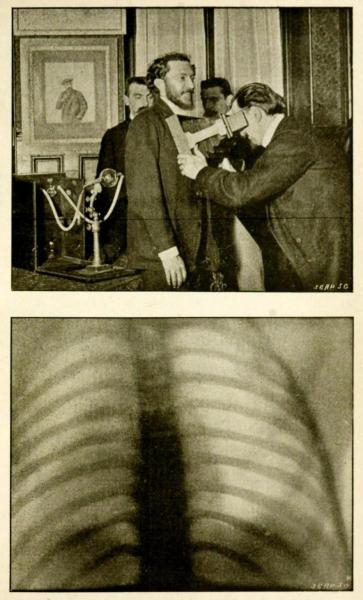 Top: Screening adult men for tuberculosis with radiographyBottom: The chest of the man being screened above, clear of tuberculosis or other abscesses. Radiography and the 'X' Rays in Practice and in Theory. S. R. Bottone, 1898.