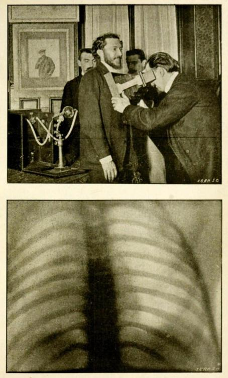 biomedicalephemera:  Top: Screening adult men for tuberculosis with radiographyBottom: The chest of the man being screened above, clear of tuberculosis or other abscesses. Radiography and the 'X' Rays in Practice and in Theory. S. R. Bottone, 1898.