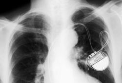 medicalschool:  Chest X-Ray of a patient with a cardiac pacemaker