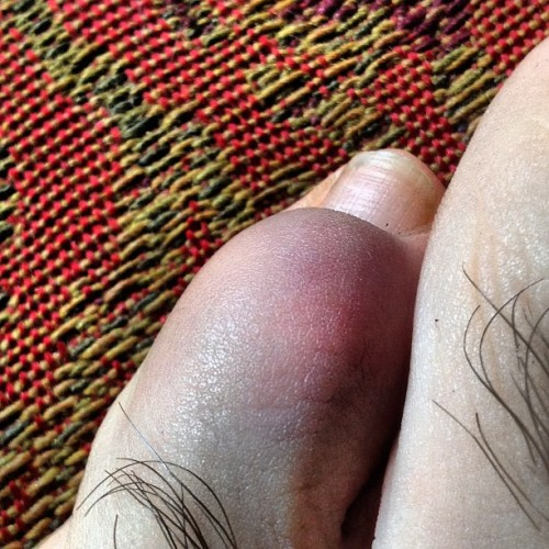 Broke toe blues.  #ow #hairy #hobbit