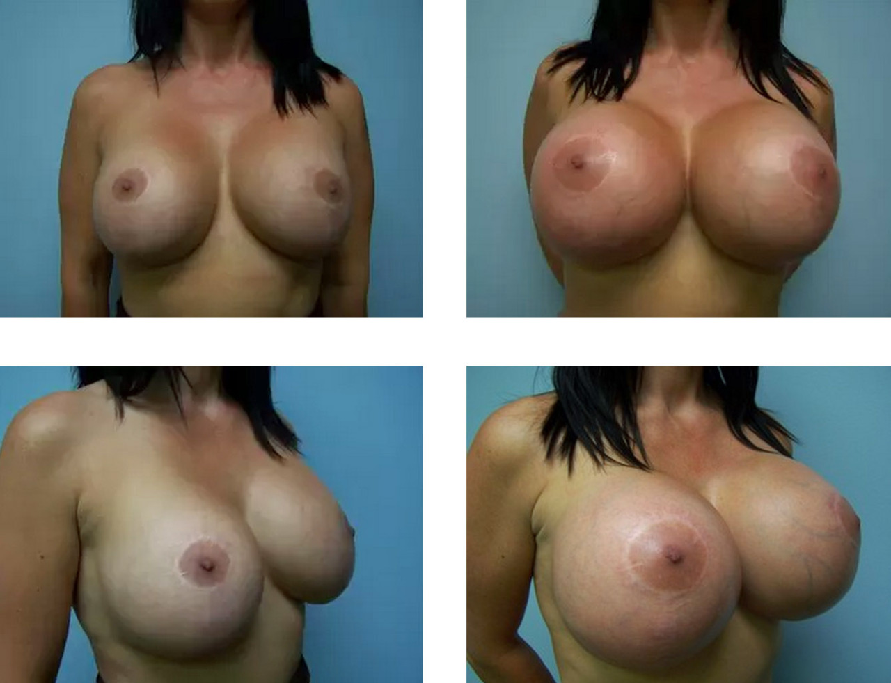 Big silicone breast implants pictures