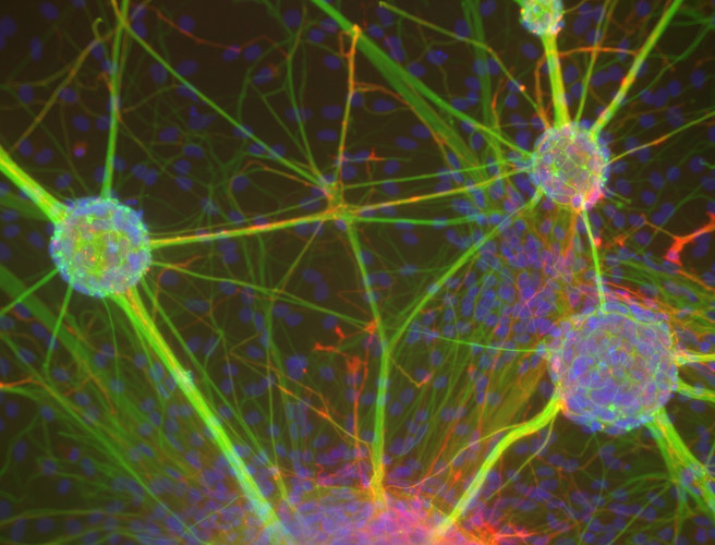 biocanvas:  When cultured in a dish, neural stem cells can form three-dimensional clusters known as neurospheres, allowing researchers to investigate the stem cell-like properties of these neurons. Image by Dr. Rowan Orme, Keele University. Our on-going contest ends March 17! Check it out soon!