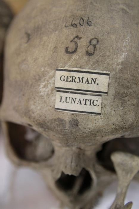 """theoddcollection:  German Lunatic from the """"Morton Collection of Skulls"""", University of Pennsylvania Museum of Archaeology and Anthropology in Philadelphia."""
