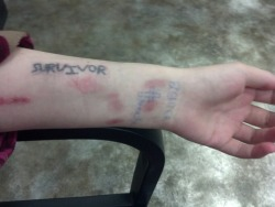 "teenytinydarling:  ""Survivor""  This is my first tattoo. I did it myself, via stick-n-poke method. My sister thinks it's a bad tattoo that I will regret. She wishes I would have waited, gone to a professional, and got a more clean-cut version of it instead. To me, a clean-cut, well polished, pretty, and easy on the eyes tattoo of the word ""survivor"" wouldn't hold any meaning to me. I didn't survive Heaven. I didn't have a clean-cut, well polished, pretty, and easy on the eyes life. No, I lived through Hell for almost seventeen years. My life has been messy, rough, painful, and at times what felt like an impossible life to lead and live. This ""bad"" tattoo represents my life, a story that is not clean-cut, but a rough, messy Hell. A life that despite all odds I am still living, I am still breathing. I'm still surviving on a daily basis. My story is a nightmare, which will have a happy ending, otherwise I haven't survived yet.  So, why would I represent my life as clean-cut, polished, and easy on the eyes to look at tattoo? That tattoo would be a bad tattoo, because it would be a tattoo with no meaning. I'm happy that I didn't wait to have a professional do it. The tattoo I have holds meaning to me, it has a place in my heart and tells a story. Something no professional grade tattoo of the word ""survivor"" could ever do for me. My Story I was born into a very broken family, which remains broken till this day. I've lived through so much hell, sometimes it feels like for nothing.  Me: I was born premature with holes in my heart. I was sexually abused from the time I was three till I was twelve. I was raped when I was fourteen. Other people knew, my mom knew, and no one did anything. I was told it was my entire fault, that I was to blame for all of it. I was a kid, and everything was being blamed on me. I've been in consoling sense I was five. I was diagnosed with depression and anger problems. I got suspended five times in elementary school for fights. I ran away twice when  I was nine and ten. I wanted to die before I turned six. It got worse when I was nine. I filled an entire notebook with death wishes for myself. I started to hurt myself, cutting, starving, and more. In 8th grade I tried to kill myself multiple times. In one of my suicide attempts I almost killed my father. I live with that guilt for the rest of my life, I almost cost his life. I almost took him away from my brothers. They would have been orphans. I was in the hospital for my suicide attempts. When I ran away during this time in 8th grade I stole two-hundred dollars of merchandise from a store, someone took my bag with all the stuff in it, and I pulled a knife on them. I would have stabbed them if they didn't give it back. My brothers hated me that year, I was ruining their lives. They couldn't do a lot of things they wanted to do. I got pregnant and miscarried when I was fifteen. I tried to kill myself twice my sophomore year. I tried again this last summer by attempting to drown myself. I have never been able to stop abusing myself, I feel as though I deserve it. I failed a lot of classes in high school. I still want to be dead, but yet I am living, breathing, surviving. My mother: She was a toxic person who suffered dearly with health problems, mental health in particular, and some secret illness that she tried her best to hide. My mom was abusive to the people around her. She abused my father and left him, taking my brothers and I away from him when I was two. She made it clear they were over when my dad walked in on my mom cheating; she was in bed with another man. My mom was an alcoholic, heavy smoker, neglectful, irresponsible, and always gone. My mom had majority custody of us kids. She did her best to keep my father away from us. When we were with her she was always smoking, drinking, or in a bad mood. She would treat us like garbage at times. She left us with nannies and babysitters for most of my time that was supposed to be with her. She never saved any money, couldn't keep a job for long, always got let go or fired, and we had to live in a small duplex in government housing. When I was seven my mom met the most amazing person she could ever meet, her soul mate, her savior. He saved her life. She was getting better; she improved greatly in the next two years. She was killed along with the love of her life, the person I have to thank, when I was nine. That man saved my mom, saved my brothers and I, and we slowly started to gain a mother in our lives. I loved my mother, no matter what she did, or didn't, do. I still love and miss her. My father: He is a strong person, who has gone through a lot. He has always done and tried his best and hardest to give my brothers and me everything we could always want. I use to blame him for a lot of things, things that were not his fault. He was a good husband to my mother, but he was heartbroken in the most horrible way. He was treated like crap by my mother. He slowly gained more custody of us over time. When my mom died we went to live with him full time. He gives his all ever day to give the best life to my brothers and I. He never once gave up on me during all the hell I put him through. He's lived a tiresome life. Always working more than anyone I know, and for so little. My dad gets me to school and my appointments on time every day. He gets my younger brother to wrestling every day. He helps keep my older brother grounded. He is losing feeling, movement, and control of his right hand. He hasn't worked in two months, he is not very happy anymore. Always in pain from the nerve damage in his right elbow. My oldest brother: I knew him from the time I was born till I was six. He was taken away by his biological father when I was six, he took him to California. He won the custody battle against my mom. He was safe. My older brother: He had severed anger problems when we were younger, from the time I can remember till I was fourteen. Sometimes he came close to almost killing my younger brother, this happened on a weekly basis. He would beat us in his anger outbursts. I lived in fear of him. In fear that he might really badly hurt me. Fear that he might kill my younger brother. As he got older he controlled his anger more. He started to abuse drugs and alcohol in middle school. He acts out; he has hurt himself during high school. I'm afraid I'm going to lose him. He tells me that if I die he dies. He can't deal with loss, or people going away. He still plays a balancing act on a tight rope, balancing for his life. I live in fear that he might kill himself. I know that it would be partly because of me. I caused him a lot of pain and problems growing up. My younger brother: He was smiles as a little kid. Then he lost that after my mom's death. He had really bad medical problems; I thought we were going to lose him. He almost died a few times because of them. He's doing better now; I don't worry about his mental health. He plays sports in high school."