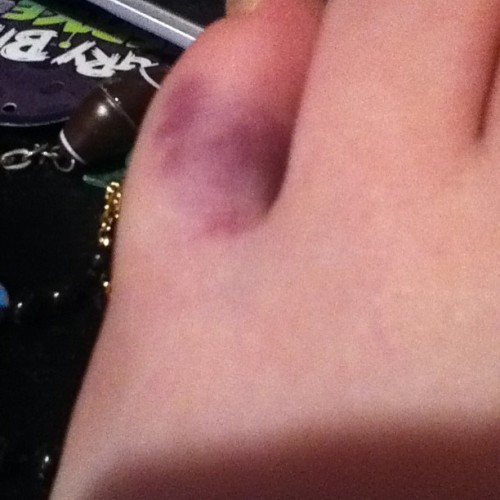 This little piggy got broken. #broken #pain #bruise #daytimes #swollen #barelywalk #littlepiggy