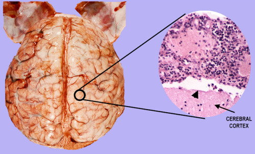 LEFT: This is an image of the brain with bacterial meningitis, note that the usually delicate and transparent arachnoid space is filled with a yellowish exudates. RIGHT: Microscopic examination of this space shows that it is filled with white blood cells and tissue debris. The arrow head marks the pial surface and the arrow labels the subjacent cerebral cortex.