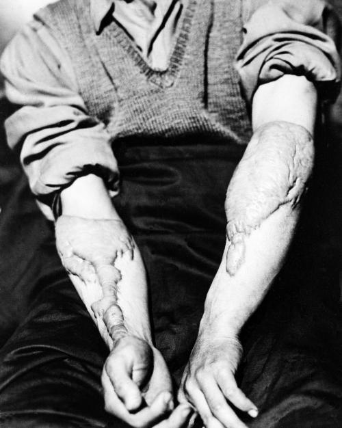 """Akira Yamaguchi shows his heavy scars, June 5, 1947, a result of the healing of burns sustained from the nuclear bomb attack of Hiroshima."""