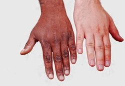 "neurosciencestuff:  Giving White People The Illusion Of Darker Skin Makes Them Less Racist An optical illusion can change the implicit biases of Caucasian people against people with darker skin, according to a study published in the August 2013 edition of Cognition. The research, a collaboration between Royal Holloway University of London, the Central European University in Budapest and Radboud University Nijmegen in the Netherlands, analyzed the implicit racial biases of 34 Caucasian participants, then subjected them to something called the Rubber Hand Illusion, where they watched a rubber hand being touched by a paintbrush as they felt their own hand being stimulated out of sight. The illusion creates the sense that the fake hand is part of the subject's body, even when it's of a completely different skin color. The more the participants felt like the darker skinned fake hand was their own, the less racist they came off in a second implicit bias test. In another test, participants underwent the same process, but some saw a white hand, while others saw a dark hand. The implicit bias test showed that the opinions of those who saw the white hand didn't change, while again those who felt ownership of the darker hand felt less racial bias. ""Across two experiments, the more intense the participants' illusion of ownership over the dark-skinned rubber hand, the more positive their implicit racial attitudes became,"" the authors write. ""It comes down to a perceived similarity between white and dark skin,"" lead author Lara Maister of Royal Holloway University of London said in a press statement. ""The illusion creates an overlap, which in turn helps to reduce negative attitudes because participants see less difference between themselves and those with dark skin."" The study suggests that racial biases aren't necessarily cemented by adulthood, but that they can be altered. ""Changes in body-representation may therefore constitute a core, previously unexplored, dimension that in turn changes social cognition processes,"" the authors write. They suggest that future research into different social groups and stereotypes could expand on their work, since this research only explored the attitudes of white individuals."