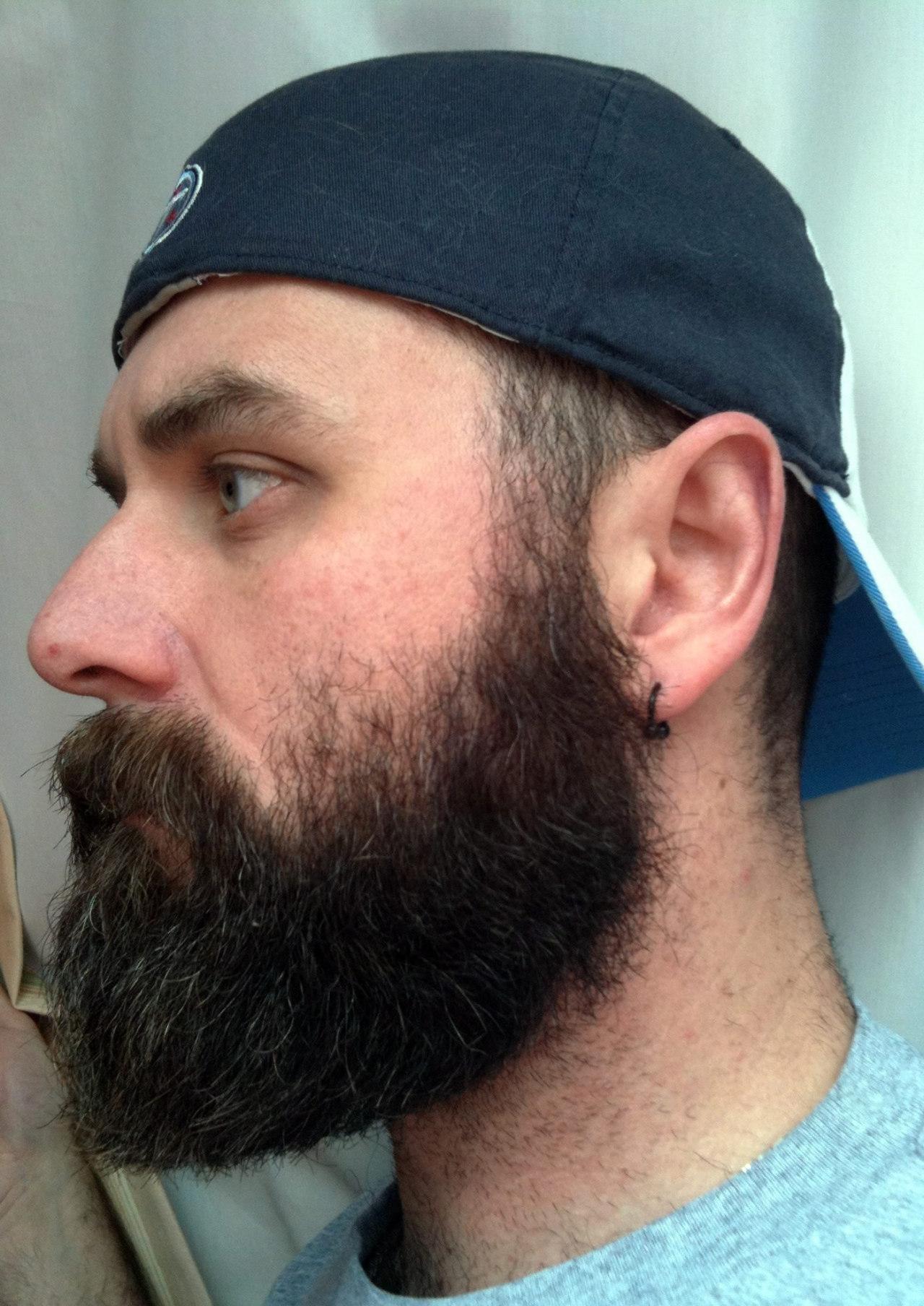 2018-06-04 05:23:10 - 77225017657 beardburnme http://www.neofic.com