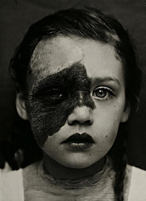 #dermatology