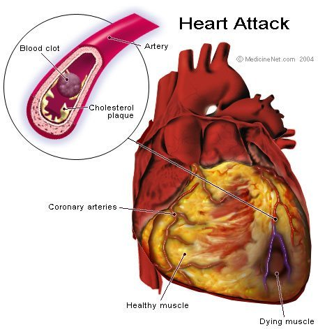 shadowkat104:  kellyjacobsbooks:  HOW TO SURVIVE A HEART ATTACK WHEN ALONE Let's say it's 6.15pm and you're going home (alone of course), after an unusually hard day on the job. You're really tired, upset and frustrated. Suddenly you start experiencing severe pain in your chest that starts to drag out into your arm and up into your jaw. You are only about five miles from the hospital nearest your home. Unfortunately you don't know if you'll be able to make it that far. You have been trained in CPR, but the guy that taught the course did not tell you how to perform it on yourself..!! NOW HOW TO SURVIVE A HEART ATTACK WHEN ALONE… Since many people are alone when they suffer a heart attack, without help, the person whose heart is beating improperly and who begins to feel faint, has only about 10 seconds left before losing consciousness. However, these victims can help themselves by coughing repeatedly and very vigorously. A deep breath should be taken before each cough, and the cough must be deep and prolonged, as when producing sputum from deep inside the chest. A breath and a cough must be repeated about every two seconds without let-up until help arrives, or until the heart is felt to be beating normally again. Deep breaths get oxygen into the lungs and coughing movements squeeze the heart and keep the blood circulating. The squeezing pressure on the heart also helps it regain normal rhythm. In this way, heart attack victims can perhaps buy precious time to get themselves to a phone and dial 911. Rather than sharing another joke please contribute by broadcasting this which can save a person's life!  Be prepared and become part of the solution. Get your free next-of-kin notification card today. Click here: https://www.InCaseOfEmergencyCard.com/  major signal boost