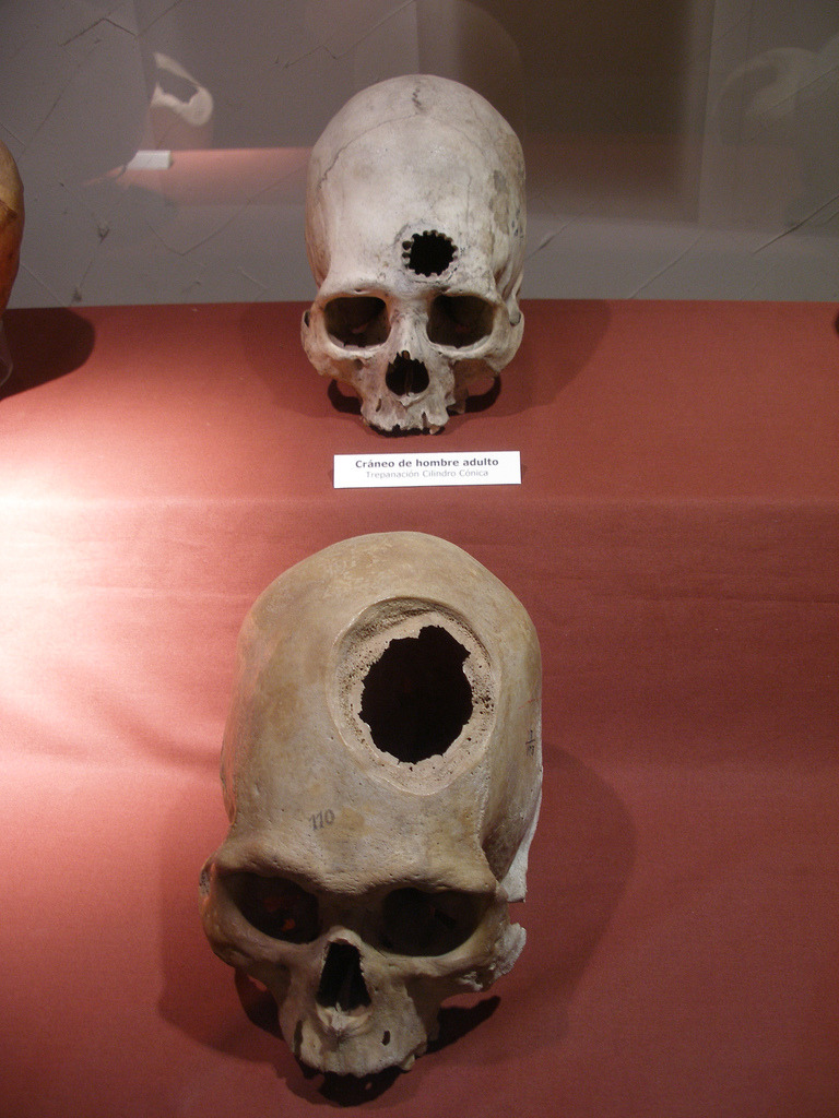 Incan skulls showing evidence of practiced brain surgery. The Incan people practiced brain surgery, in which a piece was chipped out of the skull, part of the brain removed, and the hole covered by metal beaten flat. Photo courtesy & taken by Thomas Quine