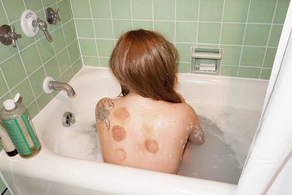 terrysdiary:  Gaga in the bathtub after having cupping done.