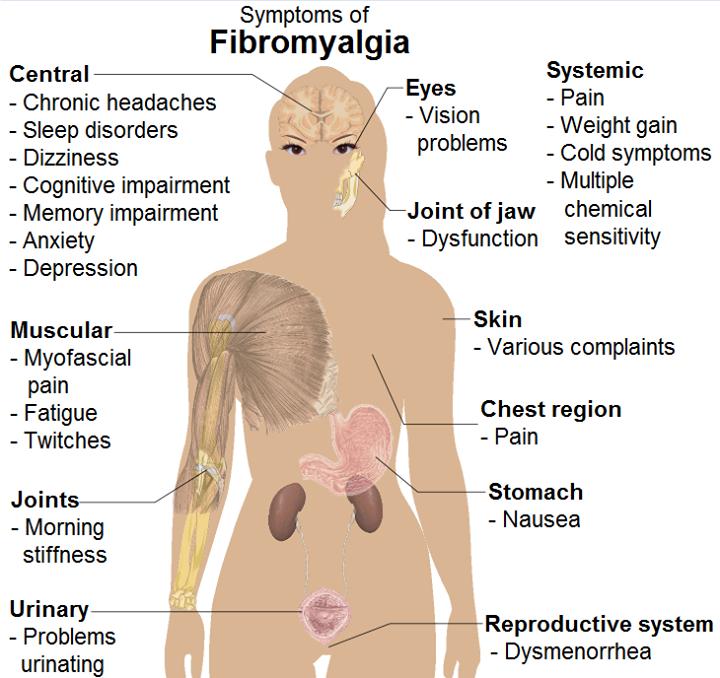 symptoms of fibromyalgia | Tumblr