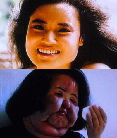 KOREAN MODEL INJECTED COOKING OIL INTO HER FACE WHEN DOCTORS DENIED PLASTIC SURGERY!!!A plastic surgery addict injected cooking oil into her face when doctors refused to give her any more silicone.Former model Hang Mioku has been left permanently disfigured following the DIY beauty treatment.After injecting an entire bottle of black market silicone into her face, Hang resorted to using cooking oil that left her face severely swollen and scarred.Her plights was featured on Korean television and viewers donated thousands of won to pay for corrective surgery. During the first of 10 operations, surgeons removed 60g of silicone, oil and other foreign substances from her face and 200g from her neck.However, Hang is still disfigured and she said she wishes she could have her old face back.Hang had her first procedure aged 28 and then moved to Japan where she had repeated treatments.She quickly became obsessed with having smoother and softer skin.Doctors eventually refused to carry out any more work on her after her face became noticeably enlarged.However, she managed to get hold of a bottle of silicone and a syringe to self-inject but when that ran out she resorted to use cooking oil.Her face was so altered that her own parents did not recognize her and local children also used to call her 'standing fan' because her face was so large compared to her small body.Numerous operations paid for by donations have managed to reduce the size of her face and neck but she is still significantly disfigured. Recently the former model was working in a recycled clothes shop, called The Beautiful Shop, and receiving handouts from the state.